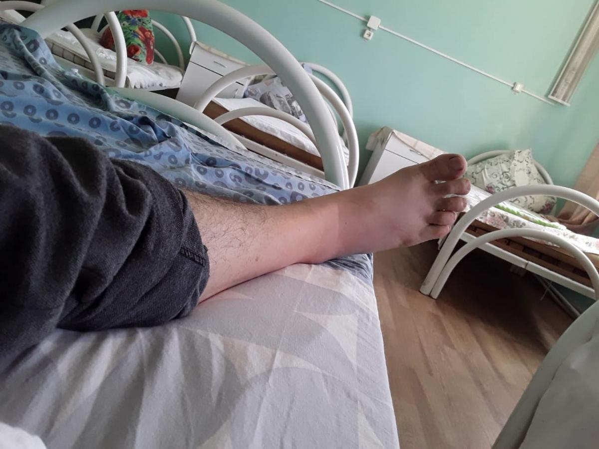 Опухоль на него укушенного степной гадюкой